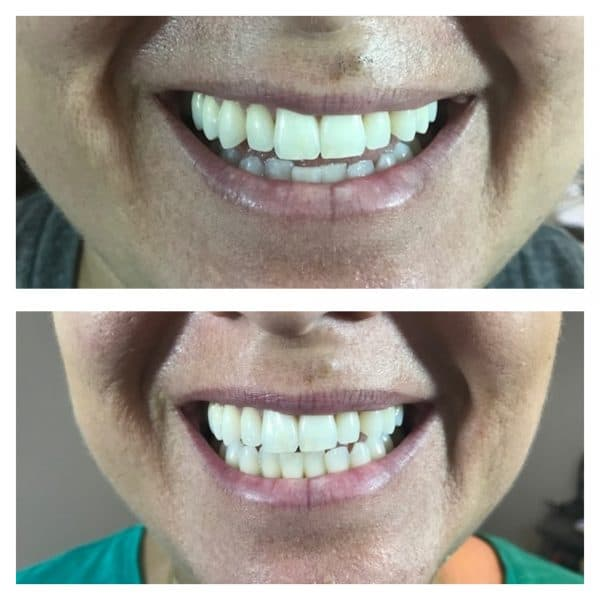 Sami Smile Brilliant Before After Teeth Whitening